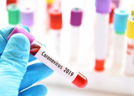 18 jurnalistimiz koronavirusa yoluxub, 1-i vəfat edib